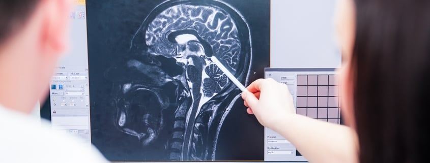 Elements Of A Brain Injury Lawsuit