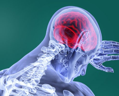 Brain Injury Lawsuit